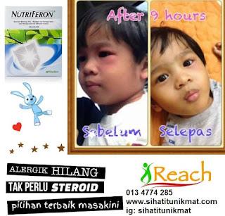 tips mengatasi alergi/alahan