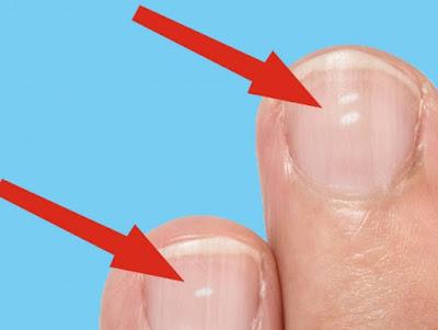 Τι δείχνουν τα λευκά σημάδια στα νύχια για την υγεία μας;
