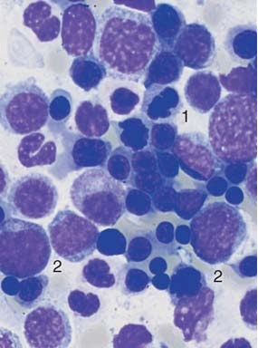 In acute erythrocytic leukemia (M6) erythroblasts and myeloblasts are usually found in the  blood