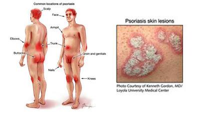 Psoriasis: una enfermedad que afecta más que la piel