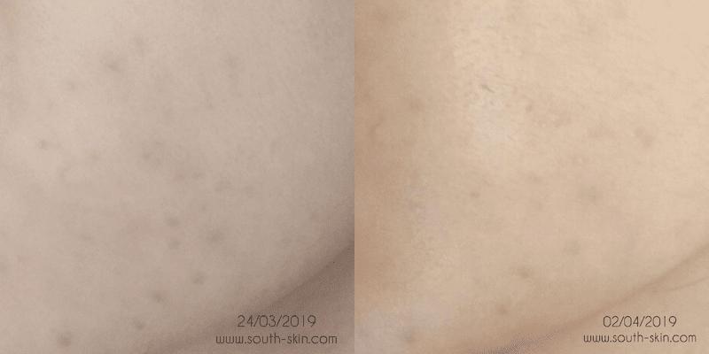 foto-week-3-week-4-avoskin-miraculous-refining-toner