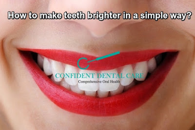 How to make teeth brighter in a most simple way?