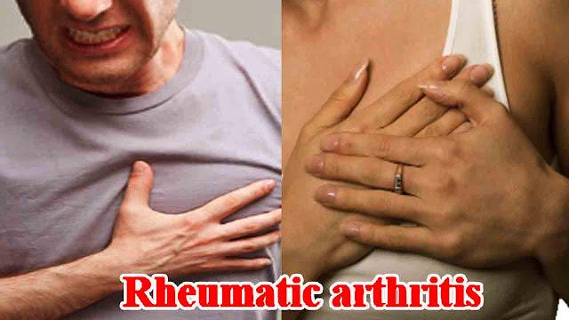 Rheumatic arthritis