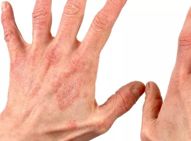 Berbagai Jenis Penyakit Autoimun dan Cara Mengobatinya