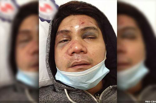 Vhong Navarro victim of brutal attack