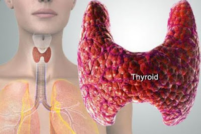 Kelenjar Tiroid dan Gondok serta Penyebab, Gejala dan Obatnya
