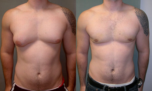 How to Avoid Getting Gynecomastia | Excel Male