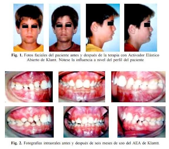 CASOS CLÍNICOS: Efectos clínicos en ortopedia funcional de los maxilares
