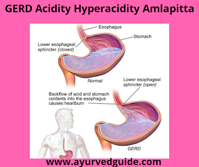 GERD Acidity hyperacidity amlapitta
