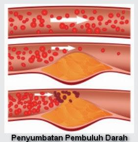 obat penyumbatan darah herbal