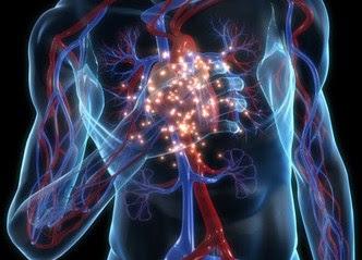 tips dini atasi serangan jantung/angin duduk