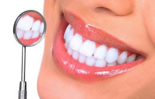 Cara-Memutihkan-Gigi-Dengan-Cepat-Dan-Ampuh