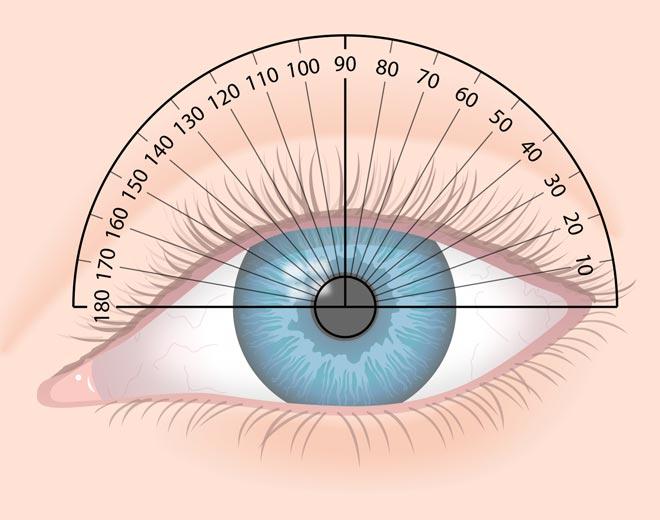 6cc391433b500d ... el astigmatismo es un error refractivo, lo que significa que no es ni  una enfermedad del ojo ni un problema de salud; simplemente es un problema  del ojo ...