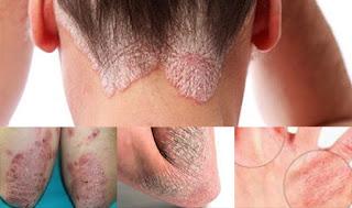 Eksim atau Dermatitis