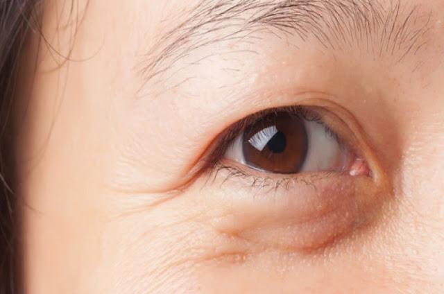 Cara Menghilangkan Kantung Mata dengan Sendok