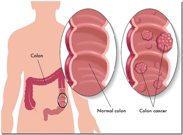 Ciri-ciri Dan Gejala Penyakit Kanker Usus Besar