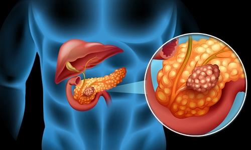 Tanaman Obat Kanker Pankreas Paling Ampuh ~ Walatra Zedoril 7