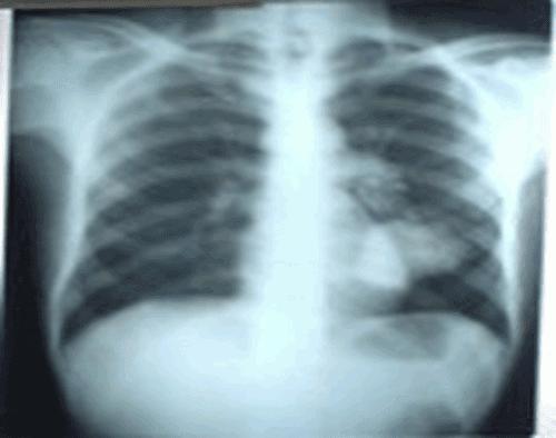 Cliché Thoracique iNterprété 10 | Comblement alvéolaire Abcès du poumon.