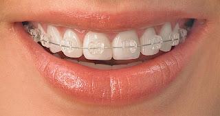 النوع الثاني تقويم الأسنان الثابت الشفاف :