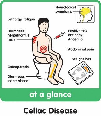 Natural Tips For Sprue Celiac Sangrehni Natural