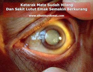 cara mengatasi katarak mata