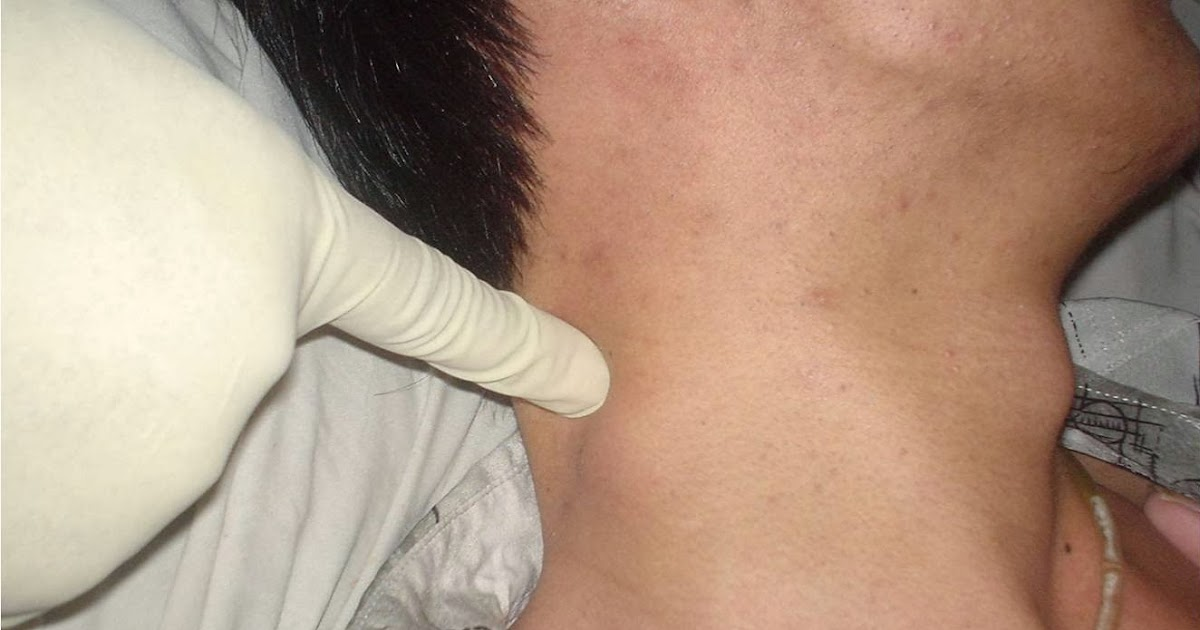 Non-Hodgkin's Lymphoma: Symptoms, Diagnosis And Treatment