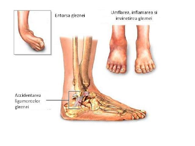 durere cu artroza șoldului ce este artroza articulațiilor arcuite