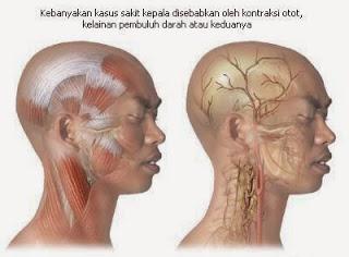 Sakit Kepala Serta Cara Pengobatannya