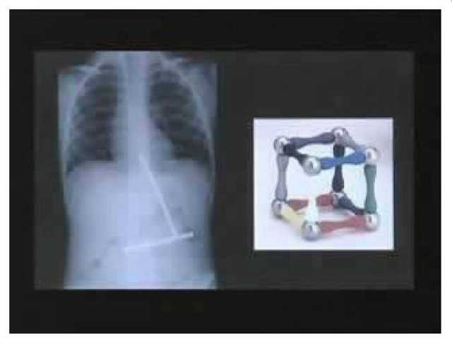 Radiografías de objetos extraños en el estómago