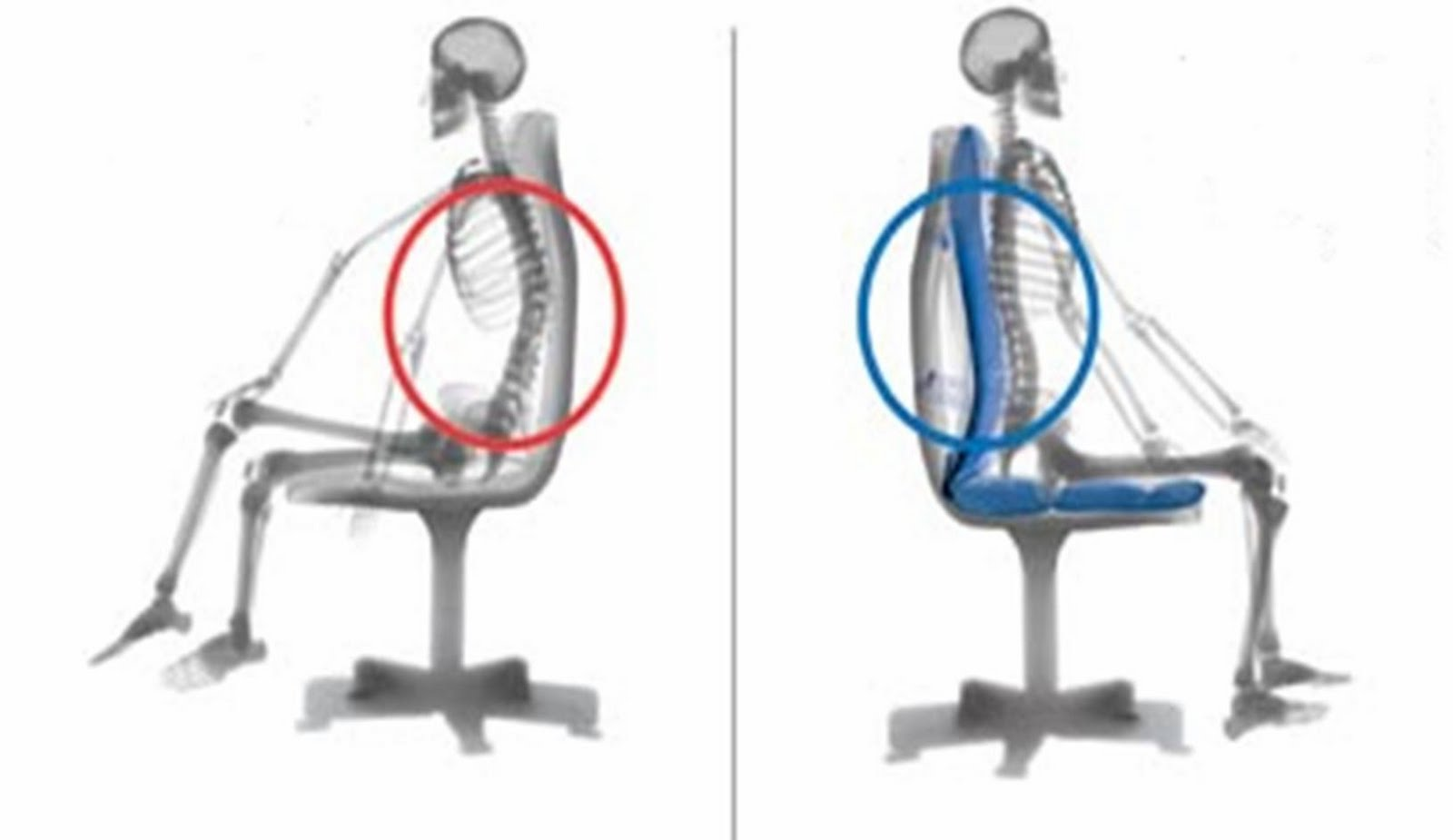 Can Occupational Sitting Cause LBA?