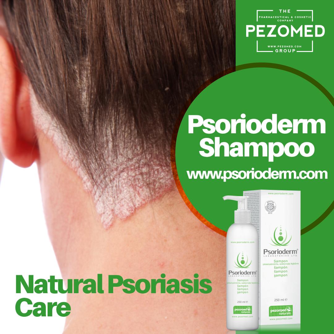 eczema poze