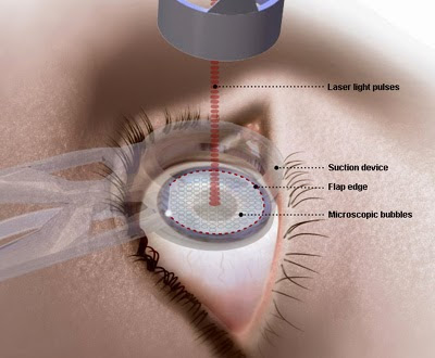 Steps in femtosecond laser-assisted cataract surgery