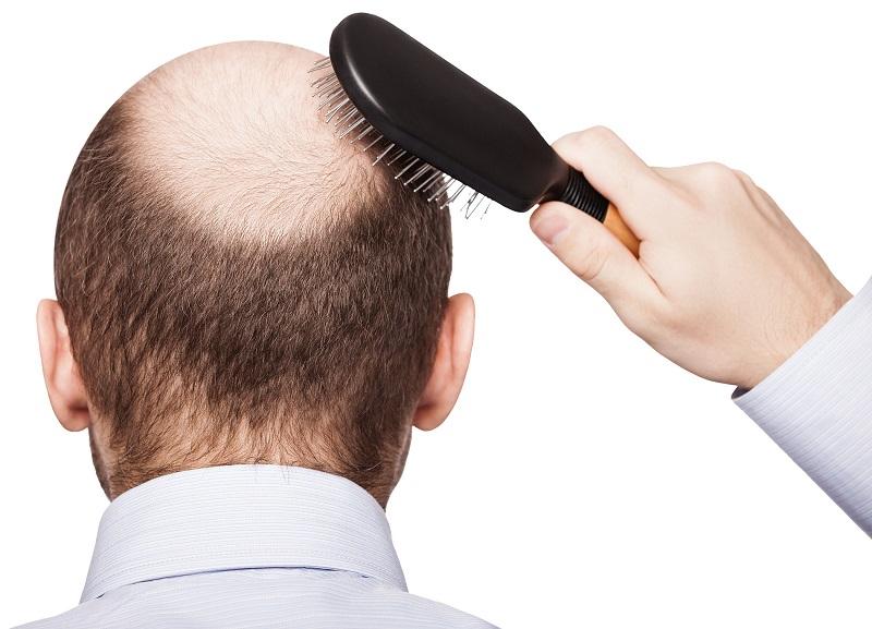 9 maneiras eficazes para parar a queda de cabelo em homens