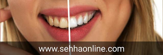 تبييض الاسنان، طريقة تبييض الاسنان، أفضل طريقة لتبييض الاسنان، الاسنان، Teeth whitening, Method of teeth whitening, The best way to whiten teeth, the teeth,