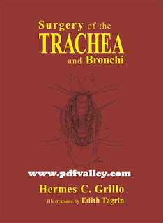 Surgery Of The Trachea and Bronchi