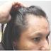 Crisis de alimentación acelera la caída del cabello