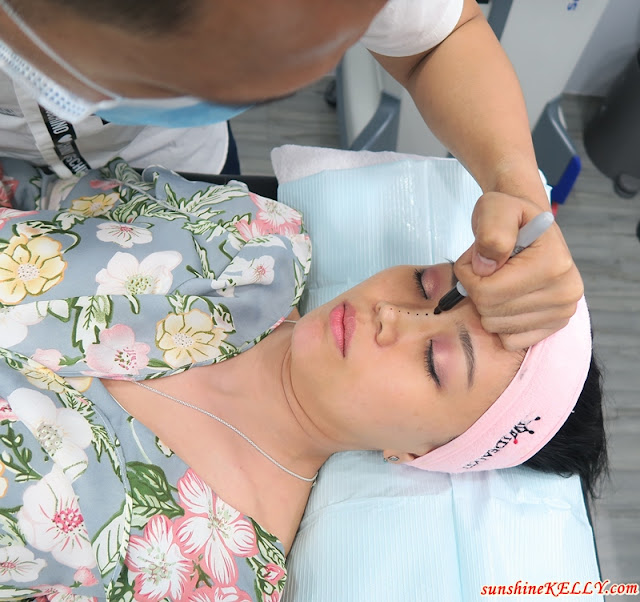 Fine Thread Contour Nose Treatment @ Idealyst Clinic, KL Trillion Experience & Review