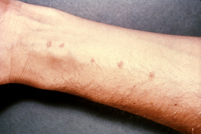 Kenali Penyakit Demam Keong yang Melanda Provinsi Sulawesi Tengah Akibat Parasit Mengerikan