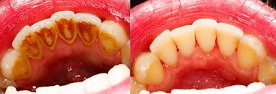 video hướng dẫn cạo vôi răng tại nha khoa -2