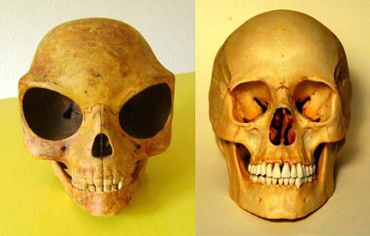 El cráneo de Sealand comparado con un cráneo humano normal.