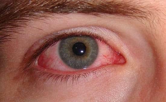 Hasil gambar untuk Macam-macam Infeksi Mata dan Cara Mengatasinya