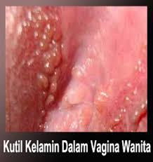 obat kutil kelamin pada wanita manjur sembuh total