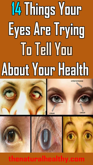 14 Things Your Eyes Are Trying To Tell You About Your Health #Health #Remedies