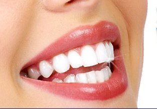 Health Perfect: Is Tooth Whitening Bad for Your Teeth?