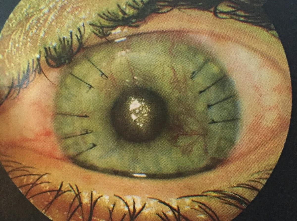 Keratoconus, corneal transplant, crosslinking, by Kirsty Boylan