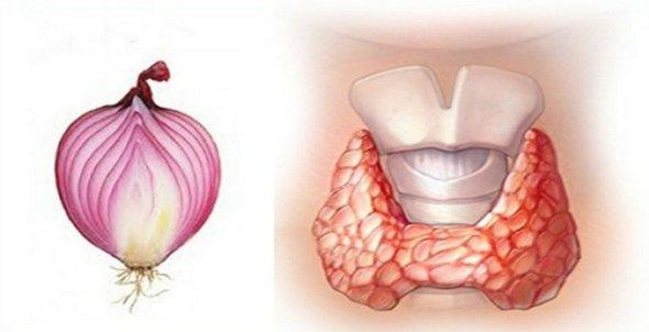 ceapa rosie face minuni pentru glanda tiroida