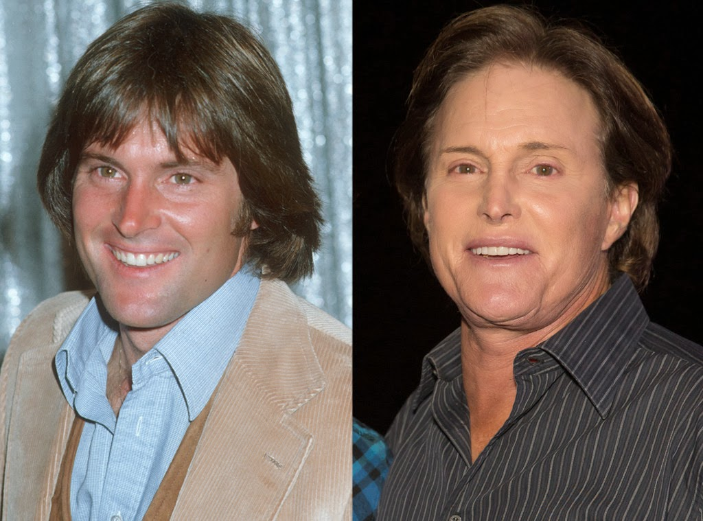 Bruce Jenner Plastic Surgery Before And After Facelift