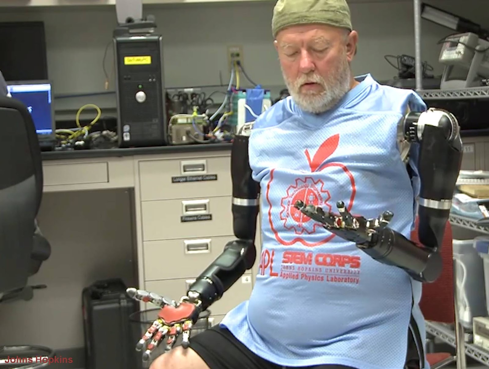 أول شخص في العالم يتحكم بذراعيه الآليتين عن طريق التفكير