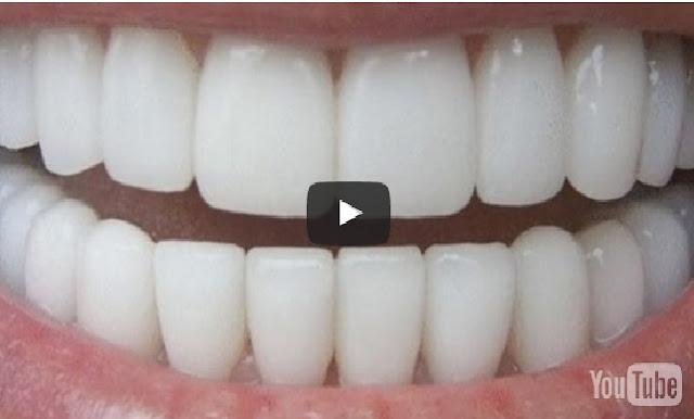 شاهد أسنان بيضاء في 3 دقائق.. وصفة مذهلة