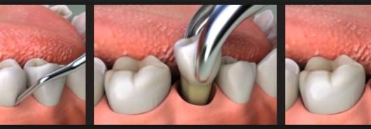 Cabut gigi ternyata dapat ditanggung bpjs